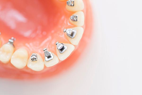 歯の裏側に装着するので、「舌側矯正」なら装置が見えません